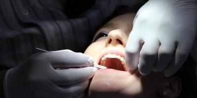 Dlaczego tracimy zęby?
